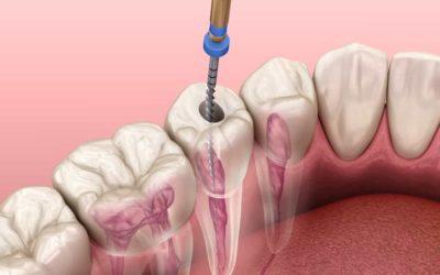 Instructies na een endodontische behandeling